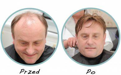 Teraz to możliwe! Bujne, piękne i gęste włosy mimo wypadania w Klinice Dr Parada!