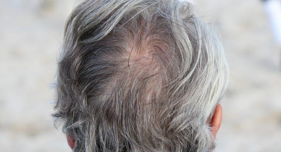 Najczęstsze problemy dotyczące włosów i skóry głowy u mężczyzn