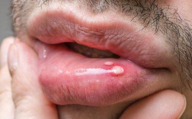 Afty – występowanie, przyczyny, leczenie i zapobieganie